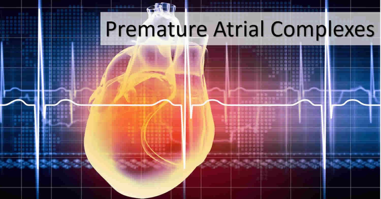 Premature Atrial Contraction Definition Causes Symptoms