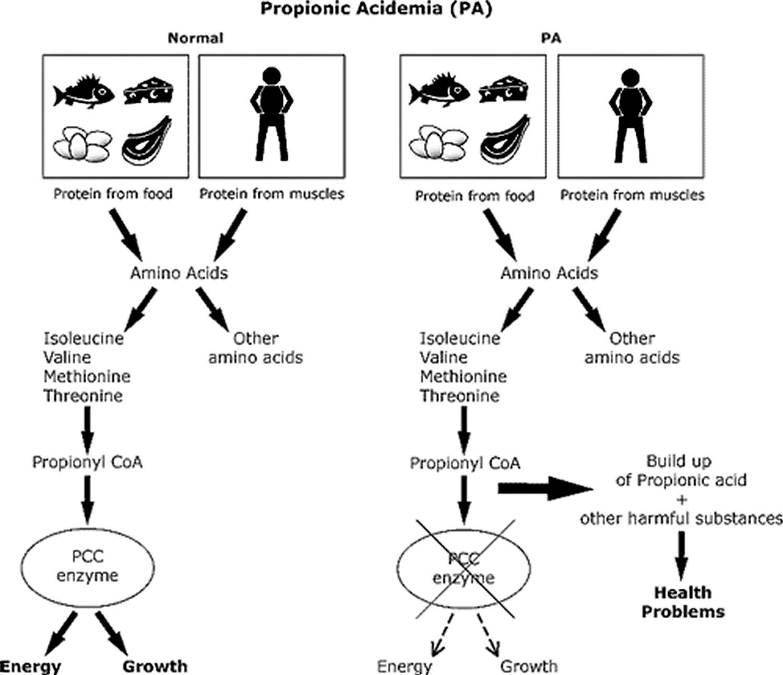 Propionic acidemia causes, symptoms, diagnosis, treatment