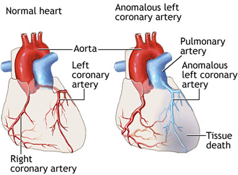 ALCAPA anomalous left coronary artery causes symptoms ...