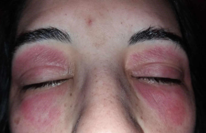 Eyelid dermatitis causes symptoms diagnosis & treatment