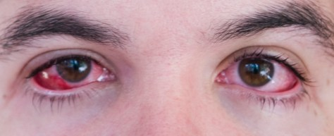 What are the First Signs of Conjunctivitis?