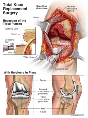 Arthroplasty of the Knee (Replacement) | Health Life Media