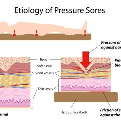 Skin Assessment Diagram Dell Dimension 2400 Motherboard Pressure Ulcers Bed Sores Health Life Media