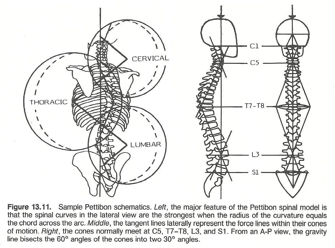 What Is Scoliosis Of The Spine