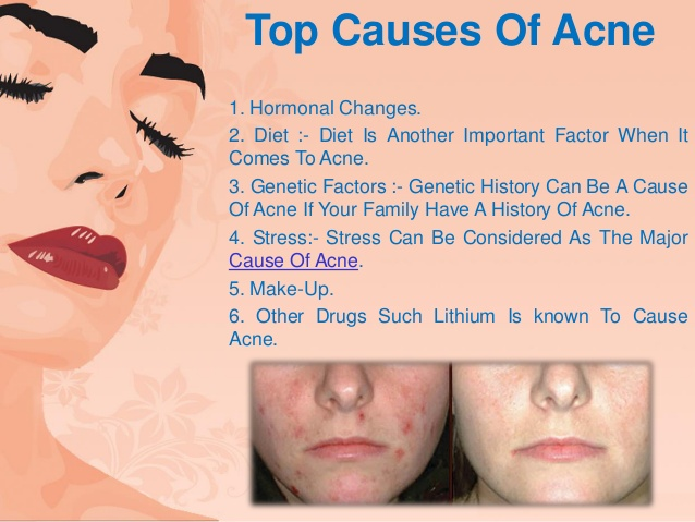How To Get Rid Of Acne Symptoms Causes Treatments And
