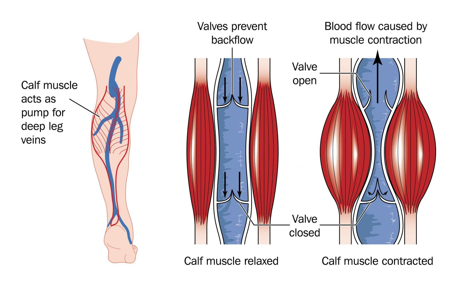 veins in the foot diagram salzer rotary switch wiring chronic venous insufficiency health life media