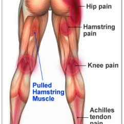Gluteus Muscles Diagram Pain Wiring 12 Volt Generator Sports And Fitness Injury: Pulled Hamstring | Health Life Media
