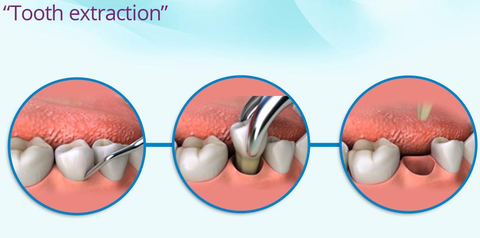 Waktu Untuk Makan Setelah Pencabutan Gigi- Global Estetik Dental Care