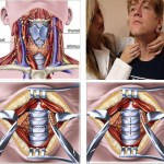 Thyroid adenoma causes and symptoms in women and men