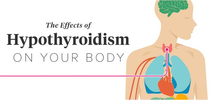 hypothyroidsim effects and natural treatment for hypothyroidism in women and men
