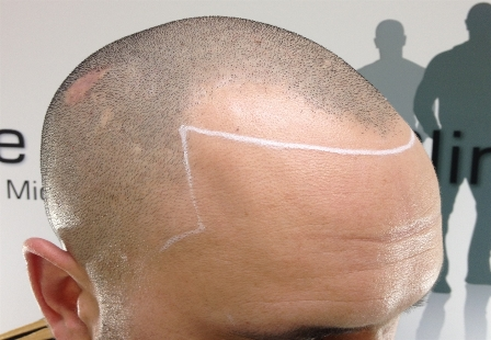 scalp tattoo micropigmentation