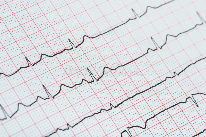 sinus-heart-rhythm-electrocardiogram-record-paper-showing-normal-heart-p-wave-pr-qt-interval-qrs-complex-68890831