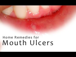 How to Heal Mouth Ulcers? Home Remedies to Cure Mouth Ulcers