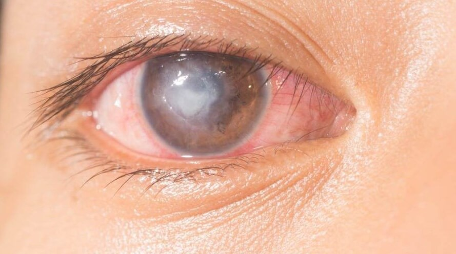 Health Risks of Using Contact Lenses and How You Can Counter Them