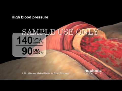 High Blood Pressure (Hypertension)