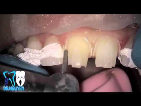 Watch Dental Crown & Bridge Procedure