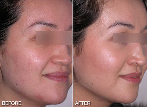 Microdermabrasion at Home - (2020 - Updated)