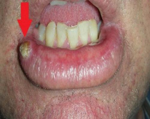 Lower Lip Cancerous White P