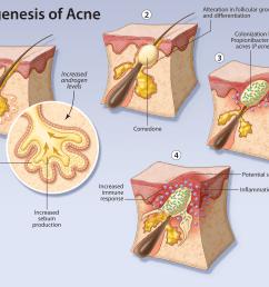 key words acne vulgaris adolescence treatment pathogenesis  [ 2883 x 2150 Pixel ]