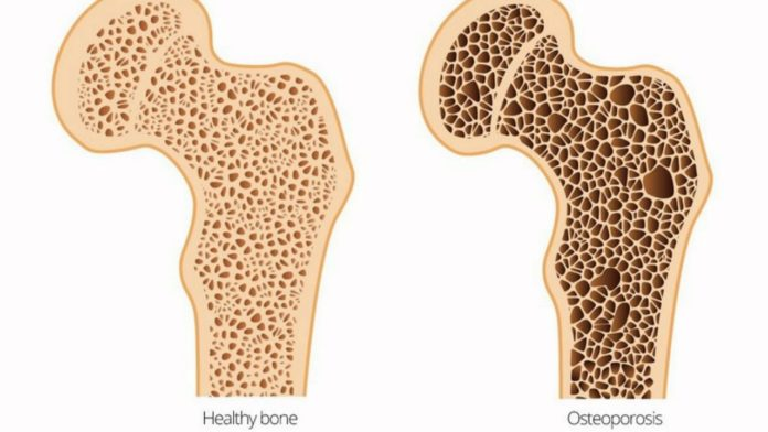 Osteomalacia: Overview, Causes, Treatment and Conclusion ...
