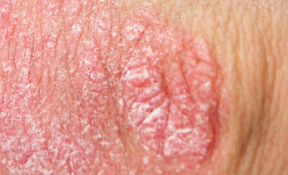 Genital-warts-can-cause-black-circular-spots-on-penis-and-genital-area