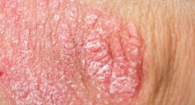 Bumps on pubic hair near anus