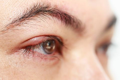 Blister On Eyelid Causes Treatment Pictures Bloody