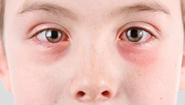 How Do You Get Rid Of Pink Eye Naturally