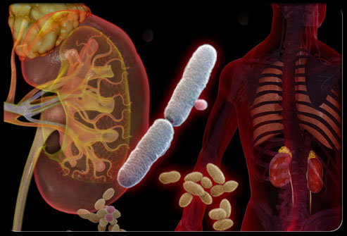 Complications of the Infection