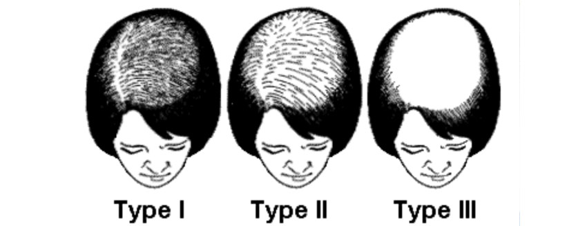 Suffering from Alopecia? Know about its Types and Causes