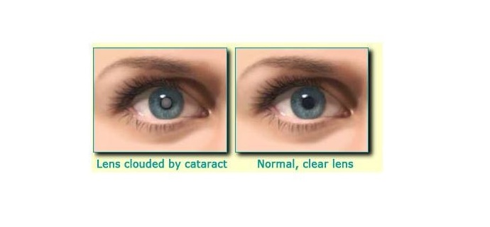 What are cataract and its causes