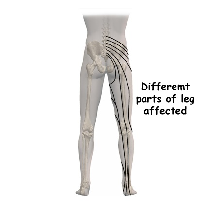 What happens if the disc ruptures?