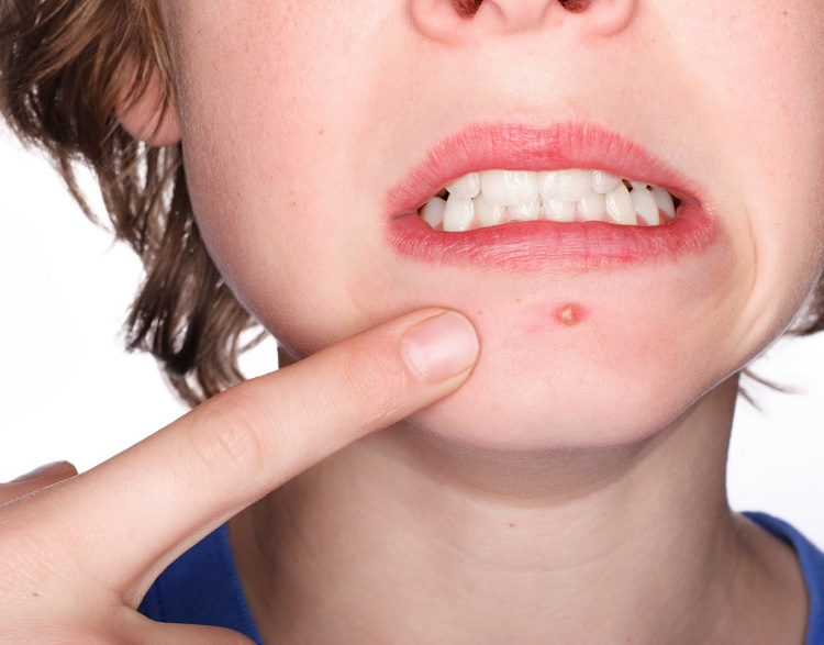 Some myths and wrong beliefs about acne