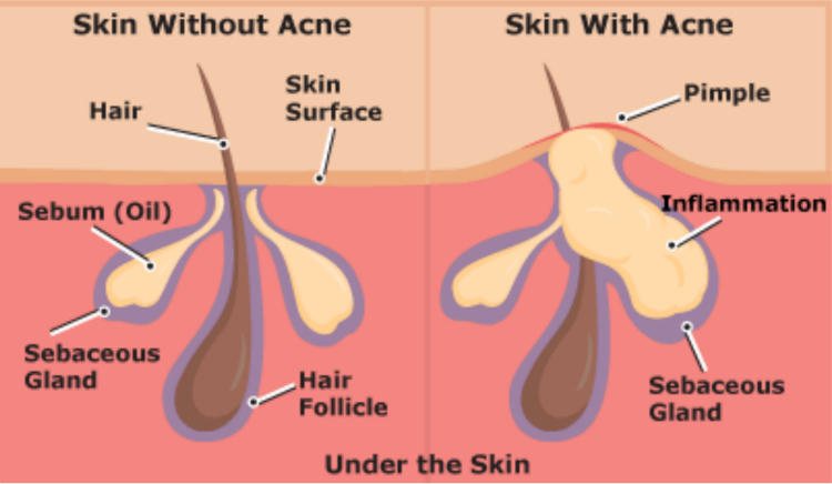 What is acne and how does it occur?