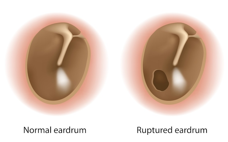 Complications of an ear infection