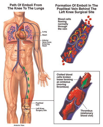How DVT can be fatal