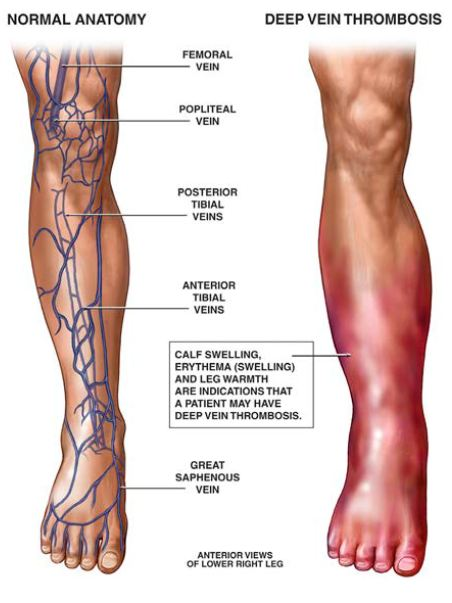 How blood clots lead to DVT