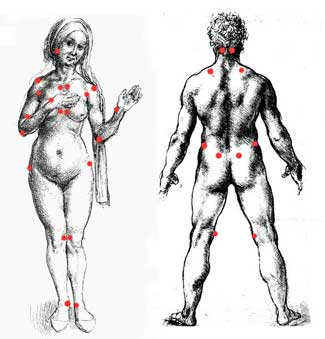 18 tender points of fibromyalgia diagram mobile home ligurien when touch hurts and blood matters getting at the pain in