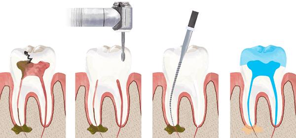 Root Canal vs Extraction: Which is Better for You ...