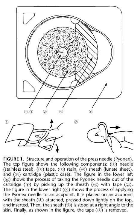 More about acupuncture: press needles as a placebo