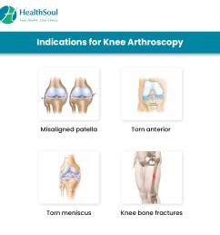 indications of knee arthroscopy [ 1080 x 1080 Pixel ]