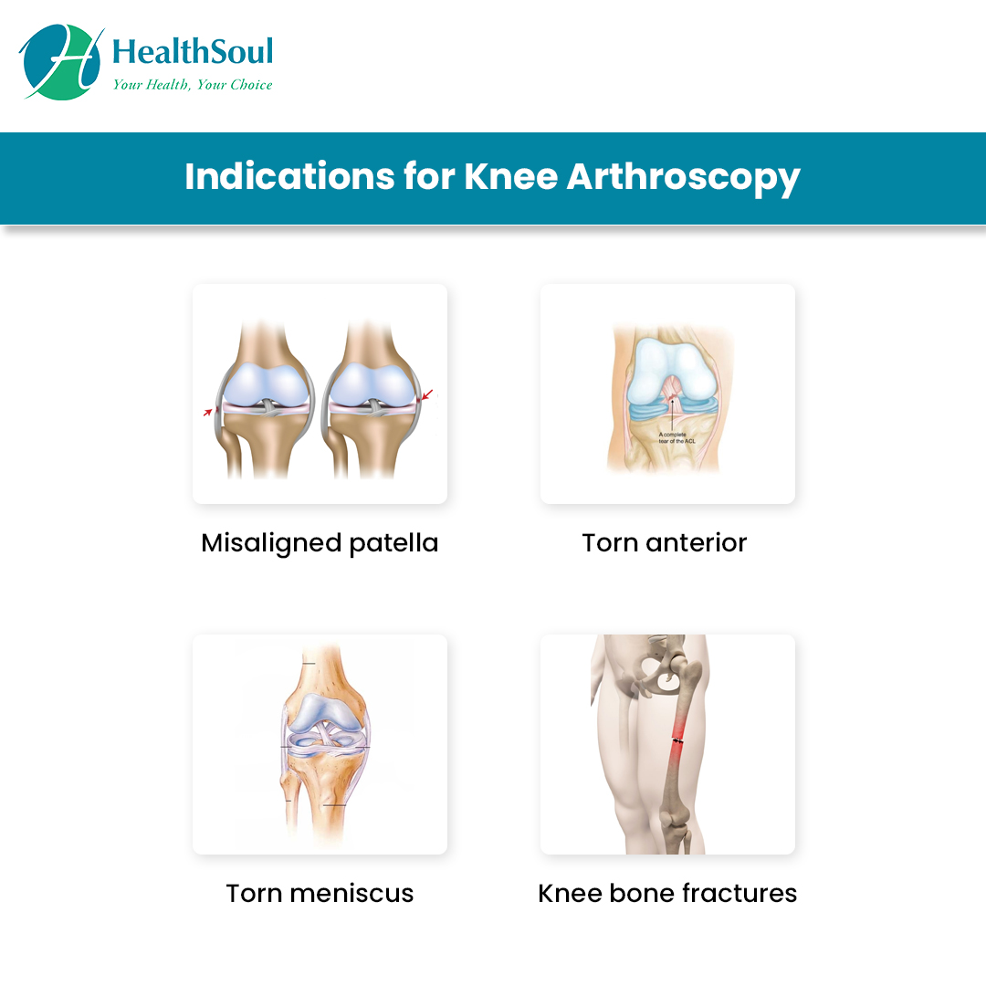 hight resolution of indications of knee arthroscopy