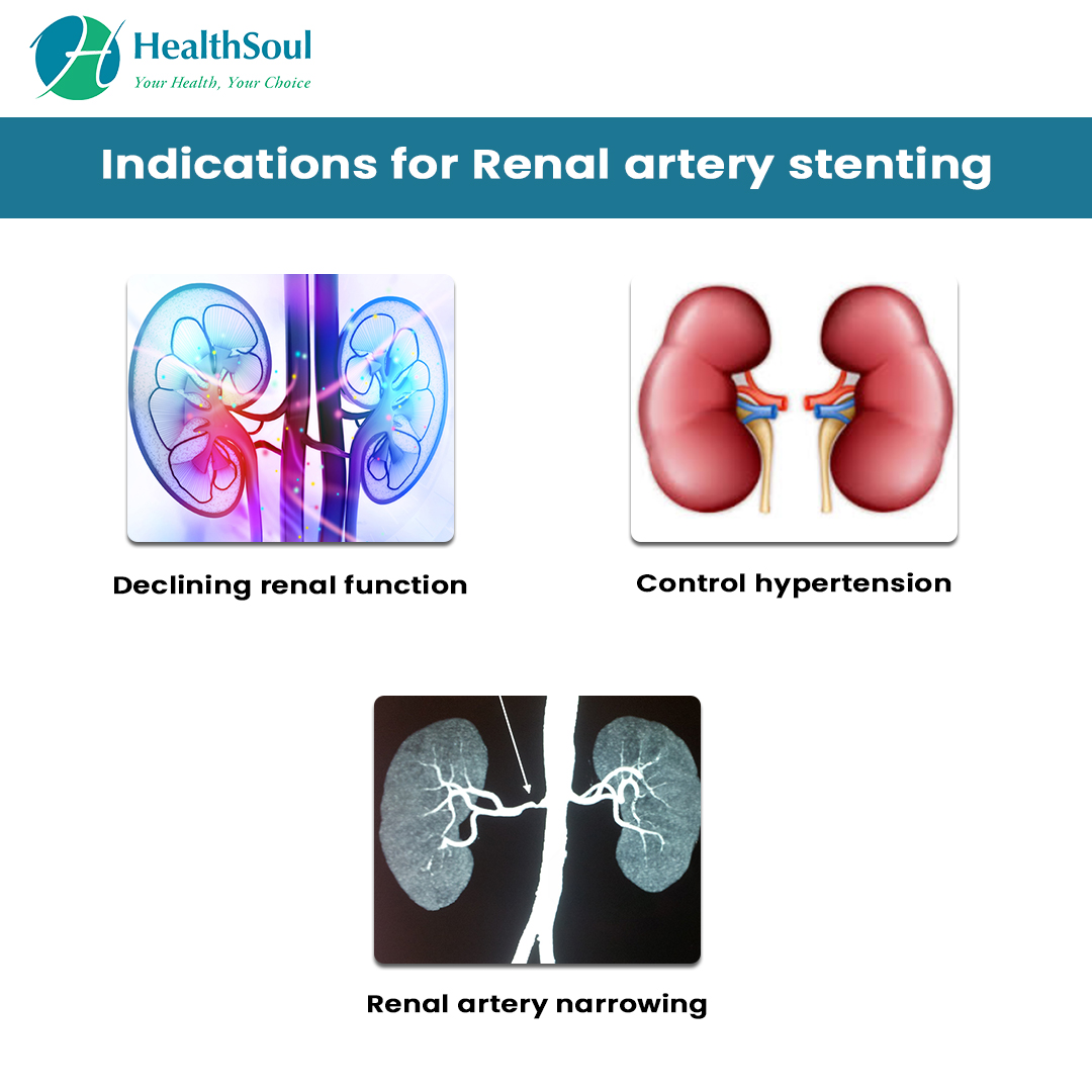 Renal Artery Stenting Indications And Complications