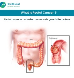 what is rectal cancer  [ 1080 x 1080 Pixel ]