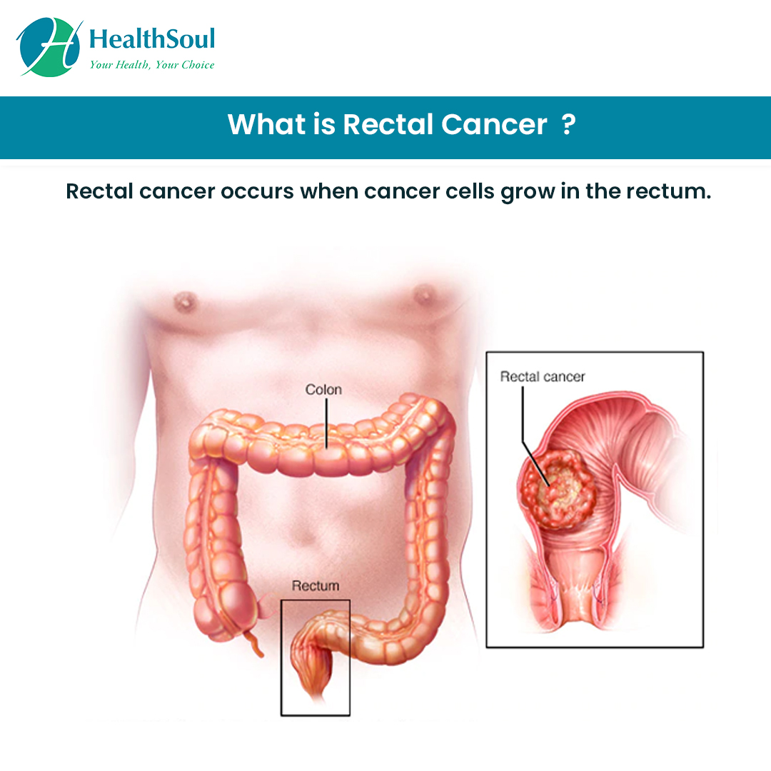 hight resolution of what is rectal cancer