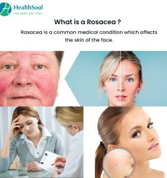 what is rosacea  [ 1080 x 1080 Pixel ]
