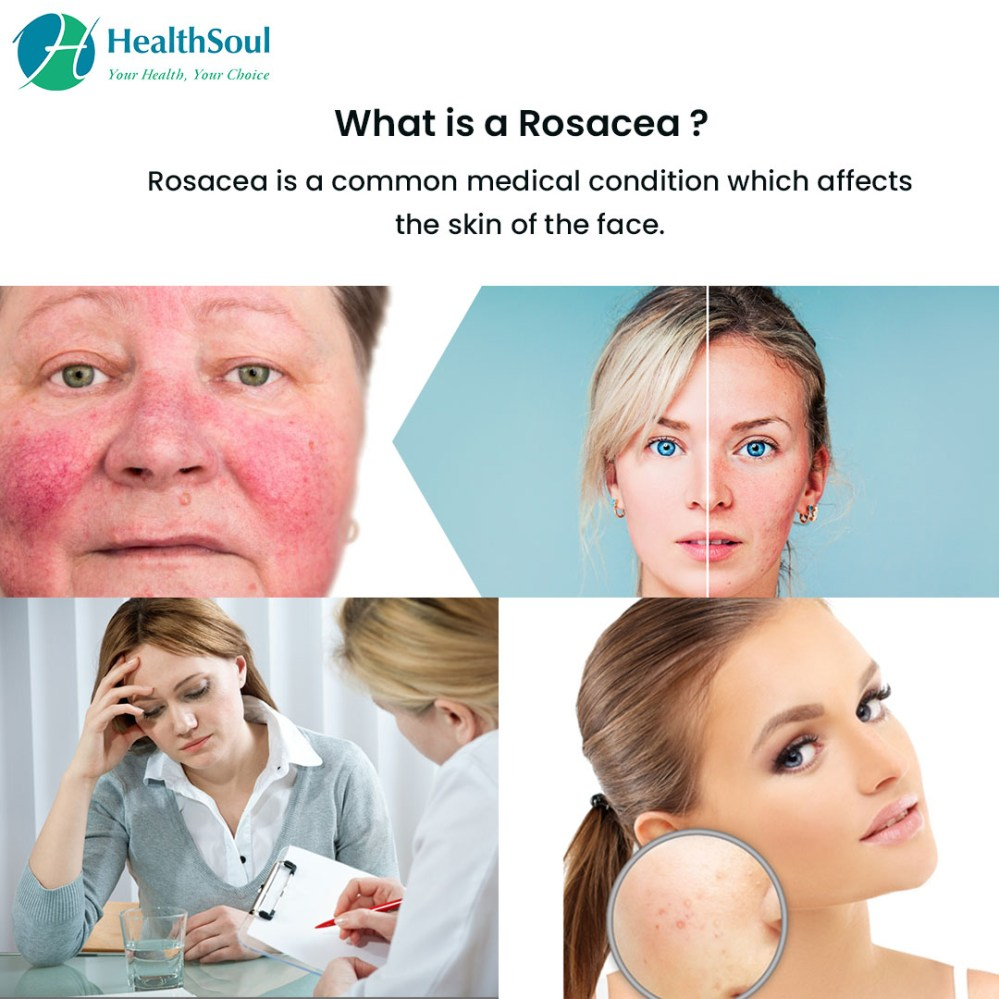 medium resolution of what is rosacea