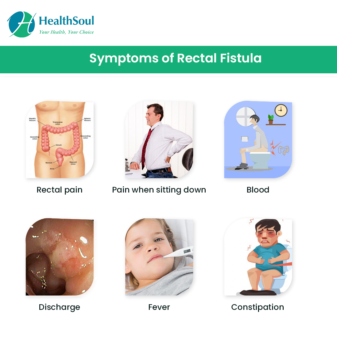 Rectal Fistula: Symptoms Diagnosis and Treatment ...