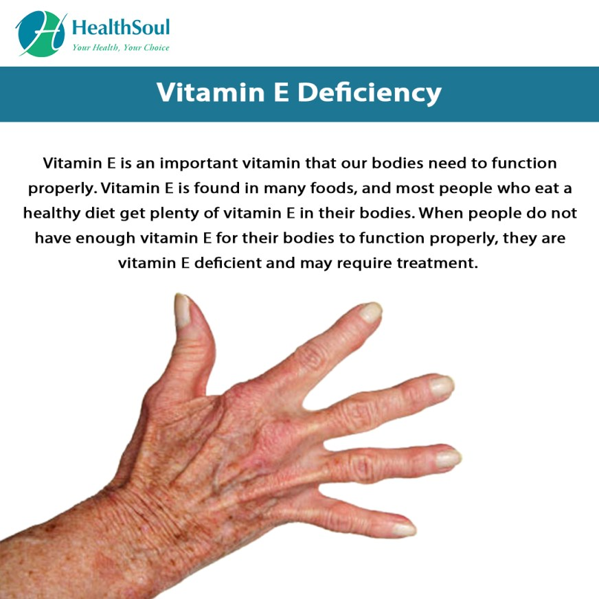 Vitamin E Deficiency Symptoms and Treatment | Diet and ...