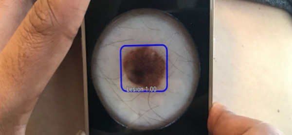 Mobile AI Detects Cancerous Skin Lesion ROIs